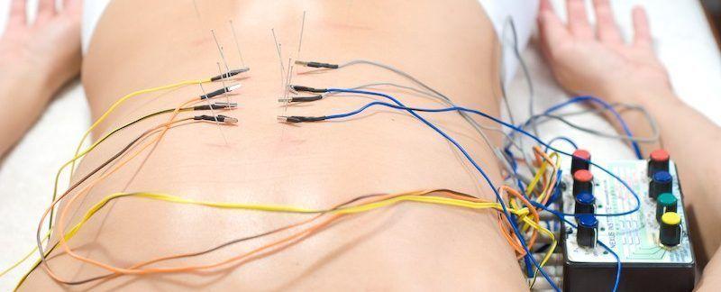 تنظیم ترشح انسولین با طب سوزنی الکتریکی