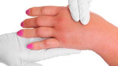 Photo of درمان ورم بدن و جلوگیری از تجمع آب یا اِدم با استفاده از طب سوزنی