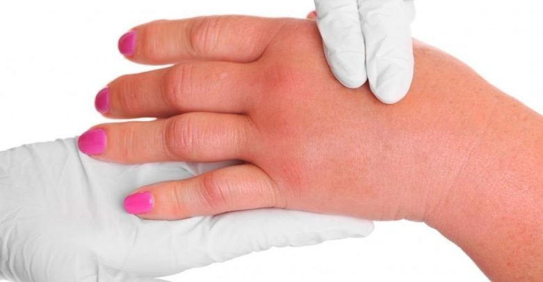 تصویر درمان ورم بدن و جلوگیری از تجمع آب یا اِدم با استفاده از طب سوزنی