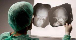 درمان سندروم پس از ضربه مغزی