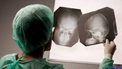 Photo of درمان سندروم پس از ضربه مغزی با روش نوین طب سوزنی