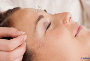درمان چین و چروک پوست با طب سوزنی و امبدینگ گت گوت طب چینی