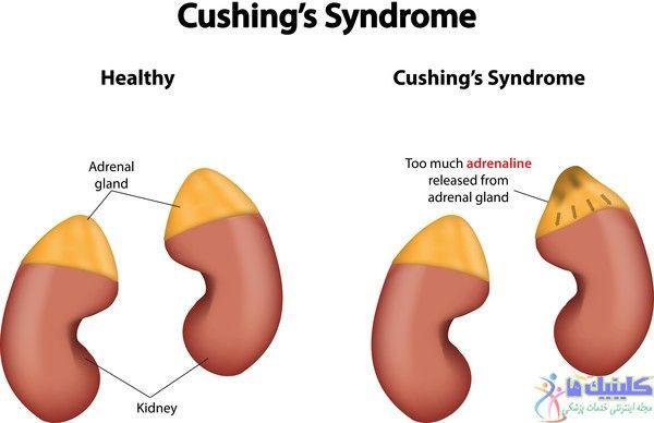 استفاده از طب سوزنی برای درمان سندرم کوشینگ و رفع علائم و عوارض این بیماری