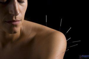 ضد عرق کردن بدن با طب سوزنی چین ممکن است