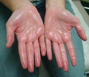 تعریق زیاد کف دست و درمان با طب سوزنی