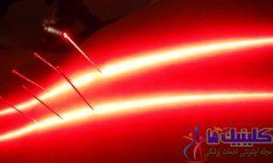 طب سوزنی لیزری برای درمان بیماری و زیبایی بدون بدون کاربرد سوزن