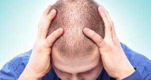 درمان کچلی و طاسی با استفاده از طب سوزنی و رفع کامل کمپشتی مو