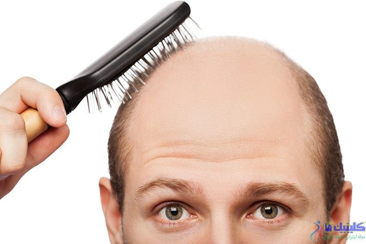 ریزش موها