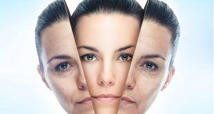 جوانسازی صورت با استفاده از طب سوزنی برای کاهش و از بین بردن چروک ها