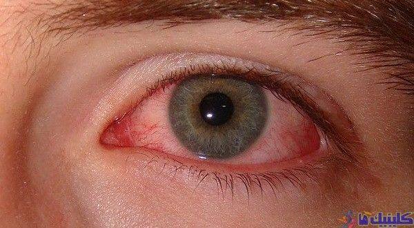 درمان سندرم سیکا یا خشکی چشم با استفاده از طب سوزنی و گیاهان چینی