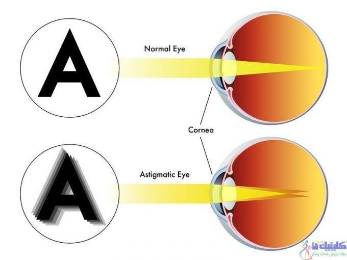 یکی از علائم بیماری آستیگماتیسم چشم