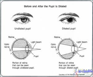 نزدیک بینی و دور بینی یک بیماری چشمی