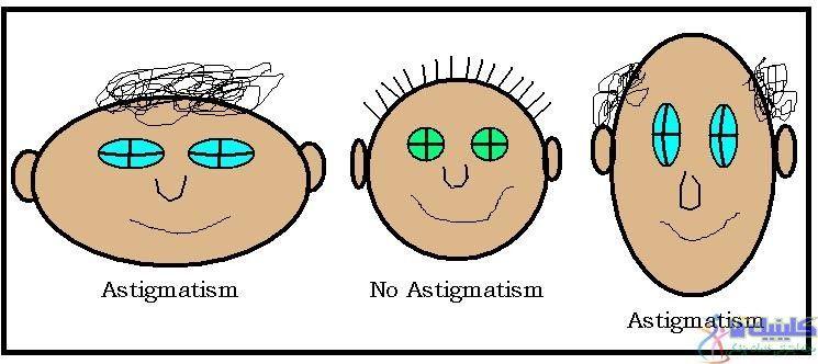 جلوگیری از بیماری آستیگماتیسم