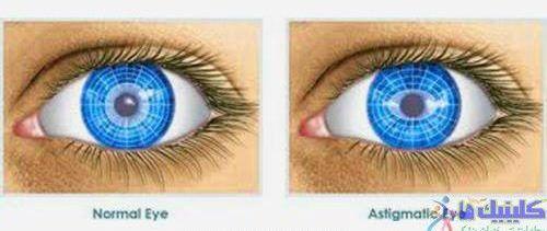 تفاوت چشم نرمال و آستیگماتیسم