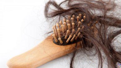 Photo of بهترین درمان ریزش مو و چاره های طبیعی لازم برای رشد آن