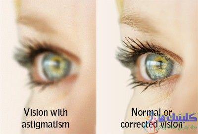 فرق چشم معمولی و آستیگماتیسم