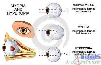 نزدیک بینی یا دوربینی چشم
