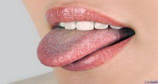 علت زبان سفید رنگ چیست؟  10 چاره طبیعی برای رفع آن