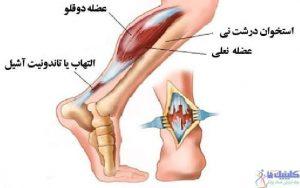 درمان درد پاشنه پا یا آشیل پاشنه