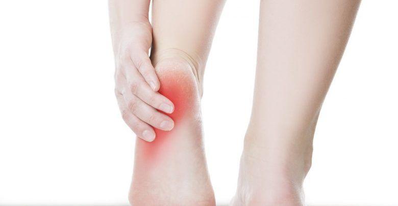 تصویر 6 درمان طبیعی برای رفع درد پاشنه پا به علت التهاب زردپی آشیل