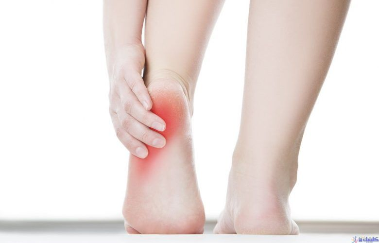 درمان درد پاشنه پا با التهاب زردپی آشیل پاشنه پا