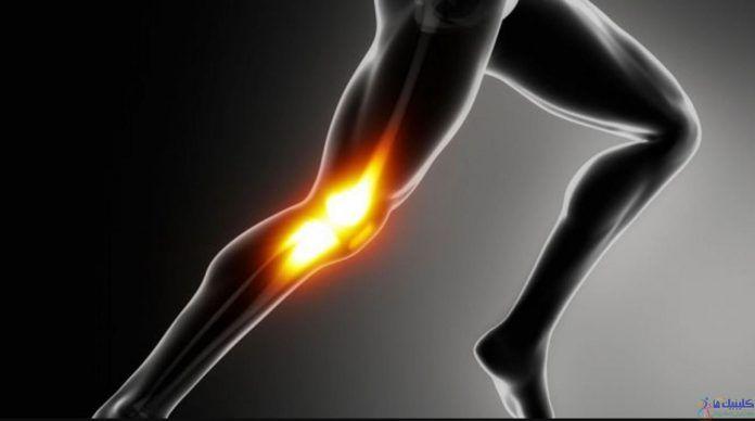 Photo of درد زانوی دونده در ورزشکاران را با چاره های طبیعی نه جراحی رفع کنید