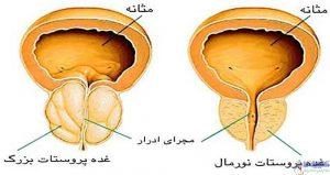 درمان پروستات ملتهب با روش های غذایی و جراحی
