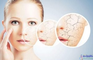 skin dryness