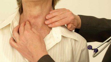 Photo of علائم و مشکلات غده تیروئید و درمانهای طبیعی که به بهبود آن کمک میکنند