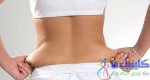 از چربی کمر و پشت بدن با انجام چاره های ورزشی و غذایی خلاص شوید