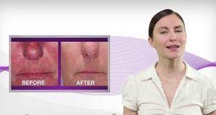 جوانسازی سریع و رفع بیماری پوست با لیزر درمانی سرد (LLLT) در نقاط طب سوزنی