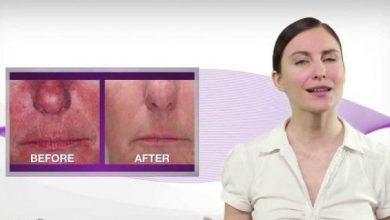 Photo of جوانسازی سریع و رفع بیماری پوستی با لیزر درمانی سرد (LLLT) در نقاط طب سوزنی