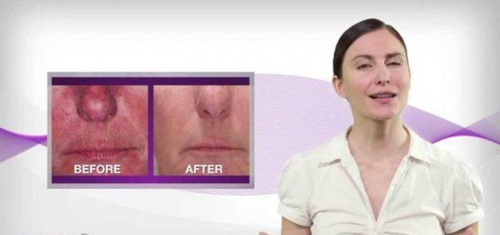 لیزر طب سوزنی یا لیزر سرد LLLT برای جوان سازی و جوانی پوست و رفع مشکلات پوستی و رفع آکنه