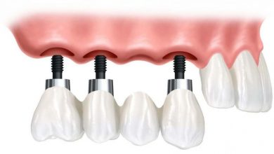 Photo of بریج دندان مصنوعی با ایمپلنت به جای دندان از دست رفته در صدمات ورزشی و غیره