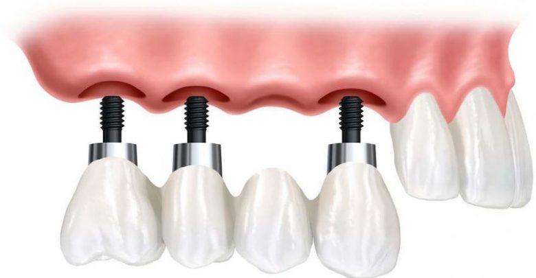 بریج دندان مصنوعی با ایمپلنت به جای دندان از دست رفته در صدمات ورزشی و غیره