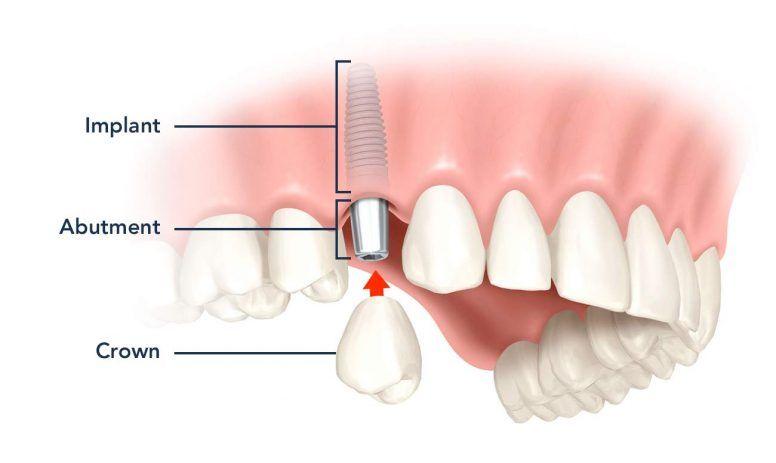 درمان ايمپلنت دندان بدون جراحی