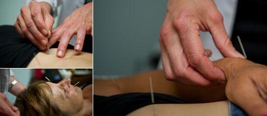 دکتر طب سوزنی در تهران برای درمان درد و بیماری و زیبایی بدن