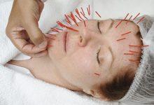 تصویر طب سوزنی صورت با نور درمانی، جهت چاقی گونه، رفع افتادگی و خطوط پوست