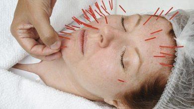Photo of طب سوزنی صورت و چاقی صورت با طب سوزنی سنتی و لیزری، رفع افتادگی و جوانی پوست