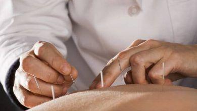 Photo of آیا طب سوزنی به عنوان یک دارونما باعث درمان دردها و بیماری می شود؟