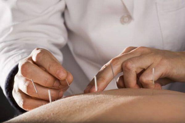 بهترین دکتر طب سوزنی در تهران برای درمان درد و بیماری و زیبایی پوست