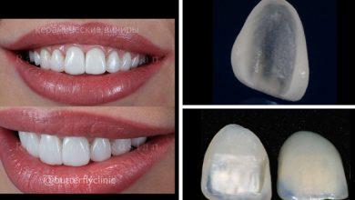 10 اشتباه رایج ونیر کامپوزیت و لمینت دندان در دندانپزشکی زیبایی