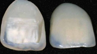 10 اشتباه رایج ونیر کامپوزیت یا لمینت دندان در دندانپزشکی زیبایی