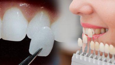 Photo of تفاوت عملکرد بین ونیر یا لمینت دندان ها چیست؟