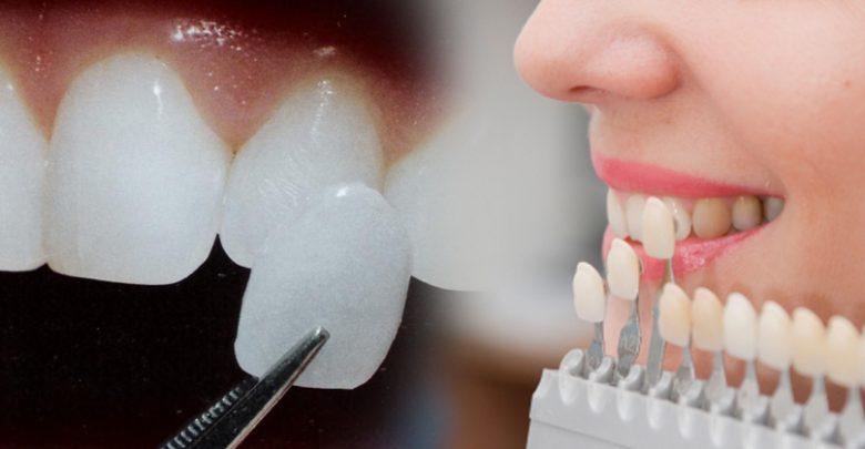 تفاوت بین ونیر دندان و لمینت دندان چیست؟