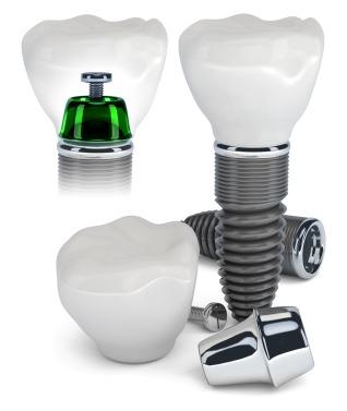ایمپلنت دندان برای درمان لقی دندان مصنوعی