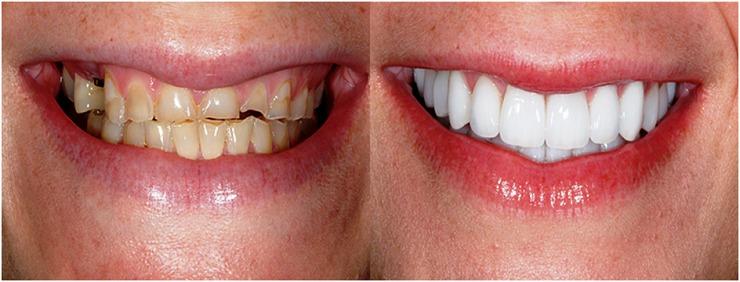 سوالاتی درباره لیمنت دندان ایمکس:
