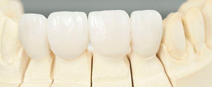 لمینت دندان زیرکونیا کاتانا katana- انتخاب عالی دندانپزشکان و متقاضیان