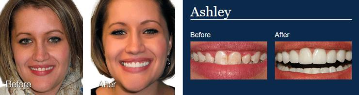 لمینت دندان لومینیرز lumineers چیست؟