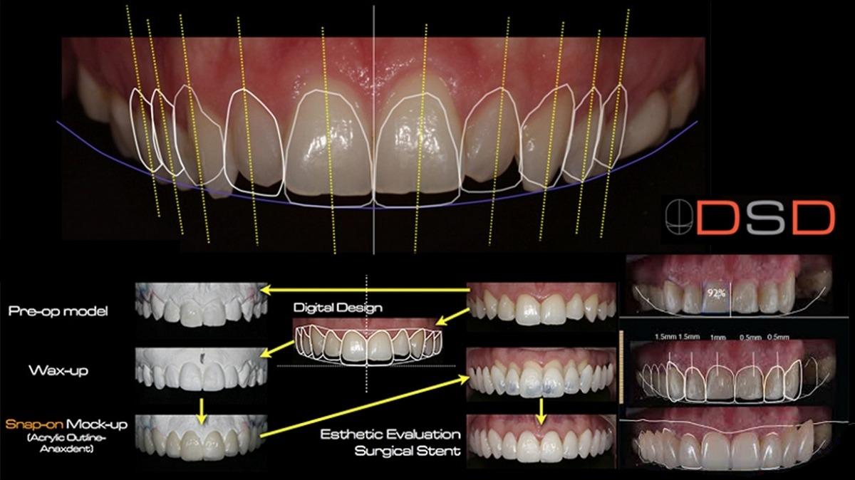 لمینت دندان دیجیتال با طراحی لبخند
